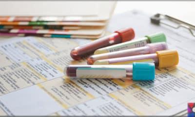 Dışkı ve idrar rengi hangi hastalıkların habercisi olabilir?