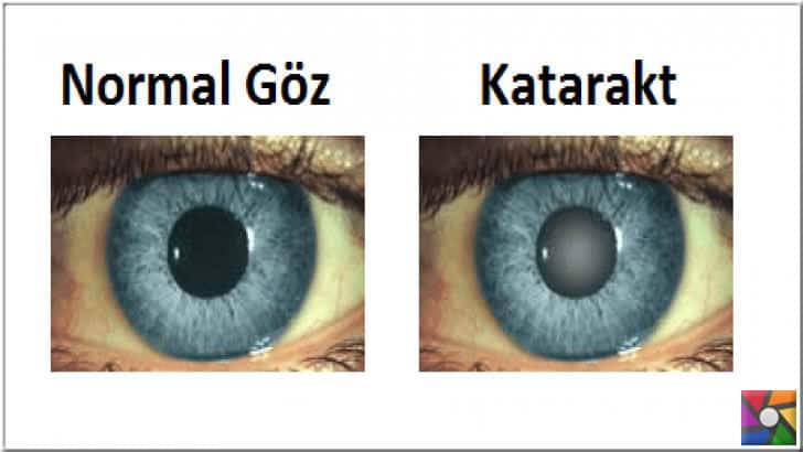Katarakt hastalarında gözün lens kısmı kapanır