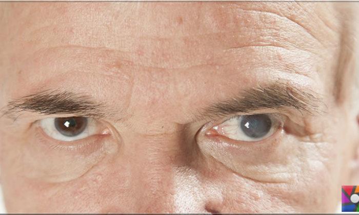 Katarakt nedir? Katarakt yaşlanan her insanda olur mu?
