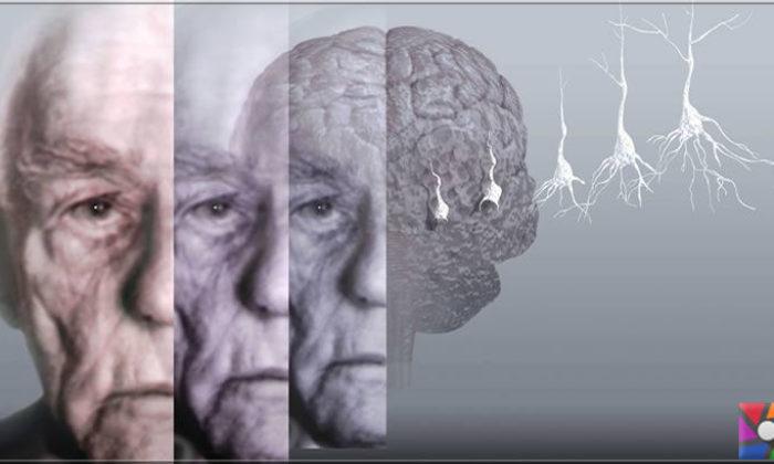 Demans (Bunama) ve Alzheimer arasındaki fark nedir?