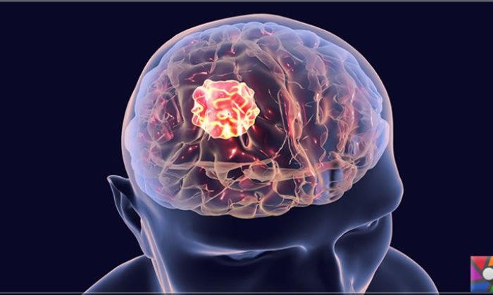 Beyin tümörü nasıl anlaşılır? Beyin tümörünün ilk belirtileri