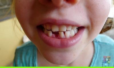 Diş protezi yerine kullanılacak diş tohumu ile dişlerimiz 3. kez çıkacak
