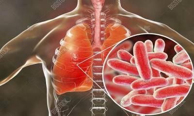 Lejyoner hastalığı Covid-19 pandemisiyle artabilir mi?