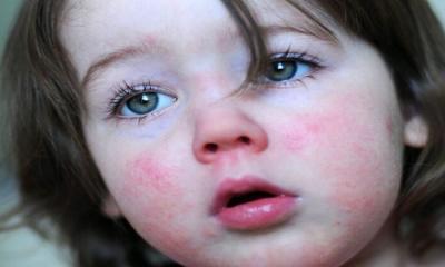 Nadir görülen Kızıl hastalığı vakaları yeniden artmaya başladı